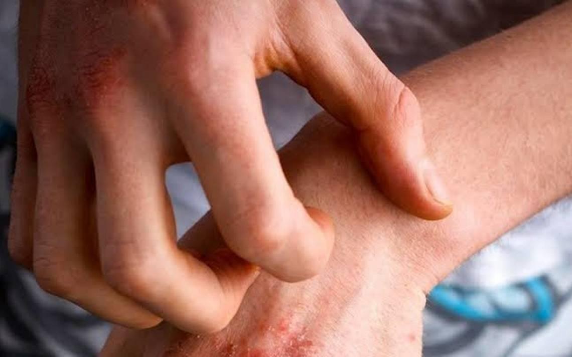 En México, 3 de cada 10 adolescentes padecen dermatitis atópica –  Mundodehoy.com