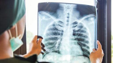 Photo of Imágenes de tórax han sido parte del diagnóstico de pacientes con COVID-19
