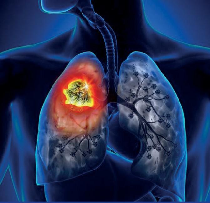 Cancer and Precision Medicine – Mundodehoy.com